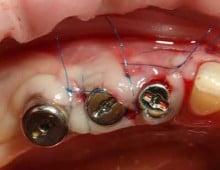 отторжение импланта зуба