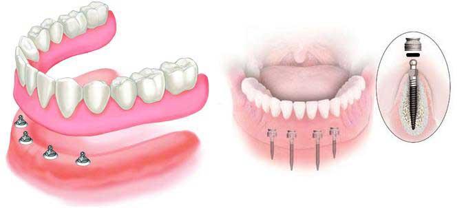 фиксация зубных протезов