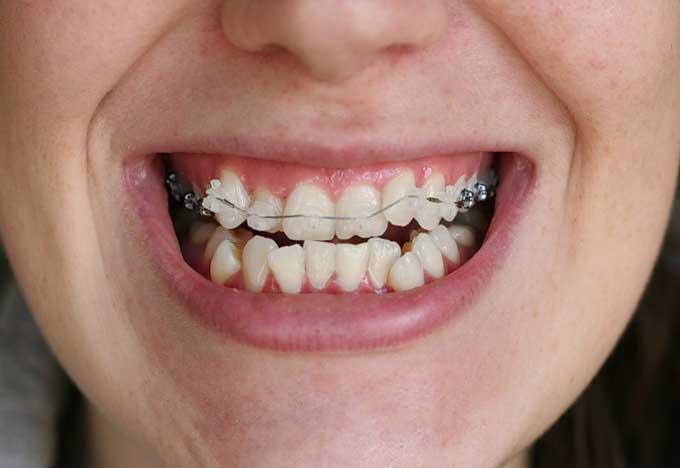 после снятия брекетов зубы искривились