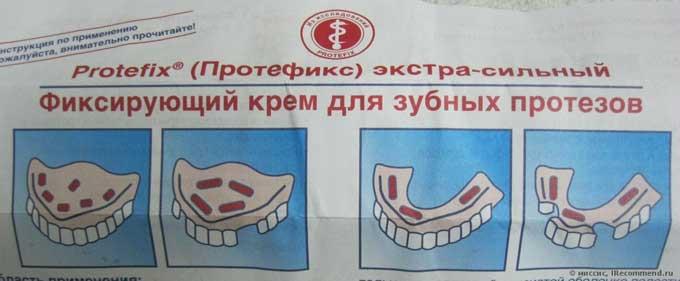 протефикс активный очиститель для зубных протезов