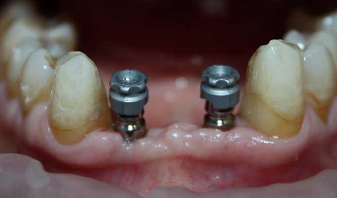 временный зубной протез