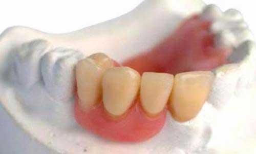 изготовление акриловых зубных протезов