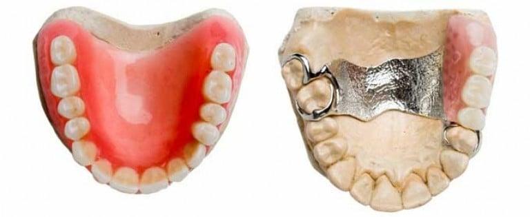 какие бывают протезы для зубов и цены оргазмы ванной