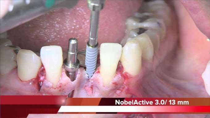 установка имплантов nobel