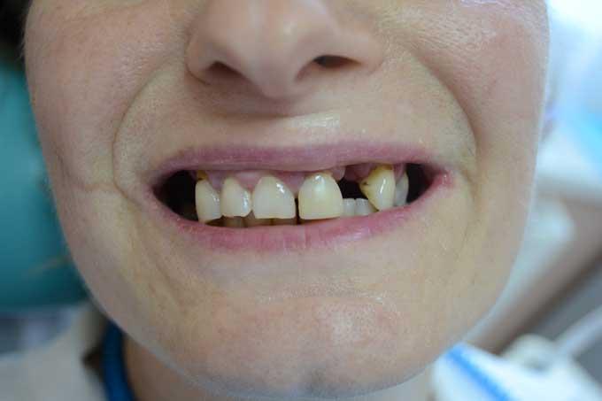временные зубные протезы показания