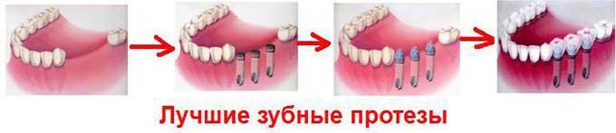 виды несъемных зубных протезов