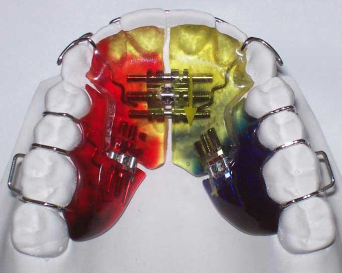 аппарат брюкля ортодонтия