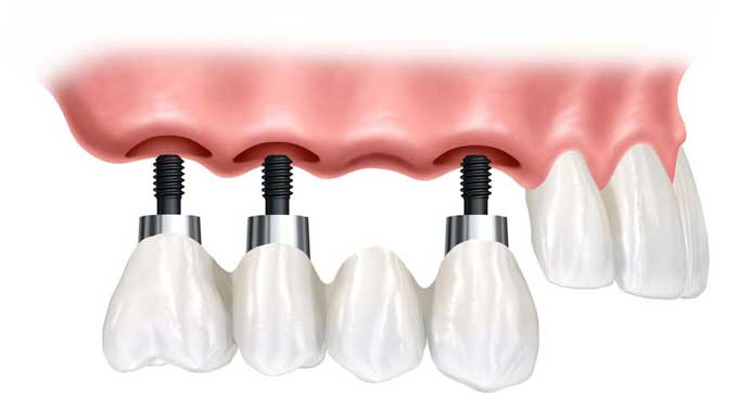 зубной мост или имплант что лучше