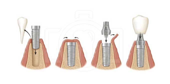 как устанавливаются импланты зубов