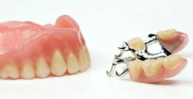 виды съемных зубных протезов