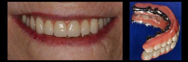 Зубные импланты в саратове цена
