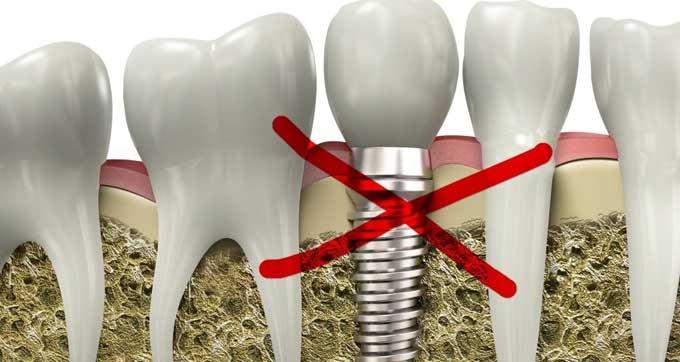 зубные импланты противопоказания