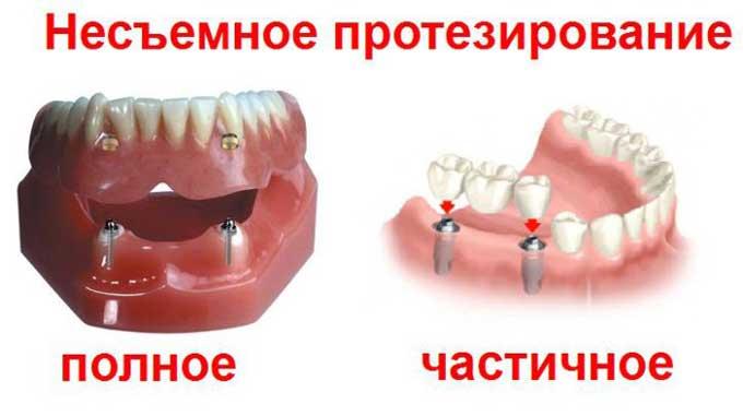 виды вставных зубных протезов