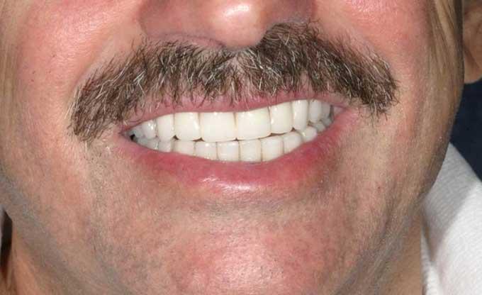 несъемные зубные протезы нового поколения