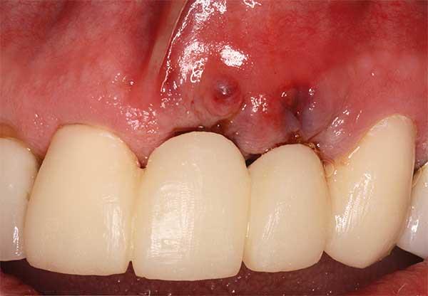как приживается имплант зуба