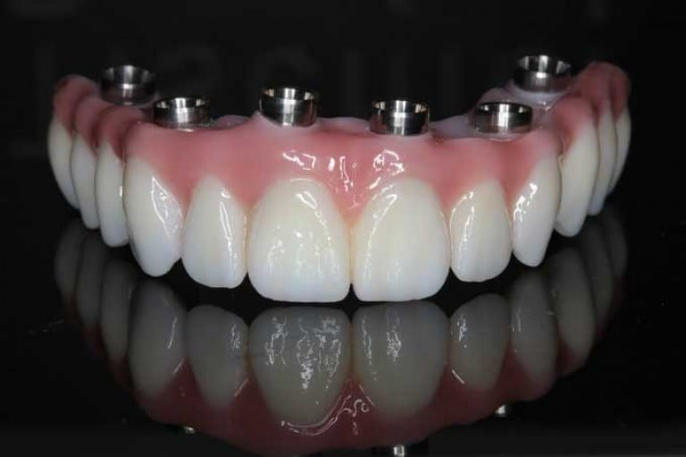 Протезирование зубов в балаково цены отзывы