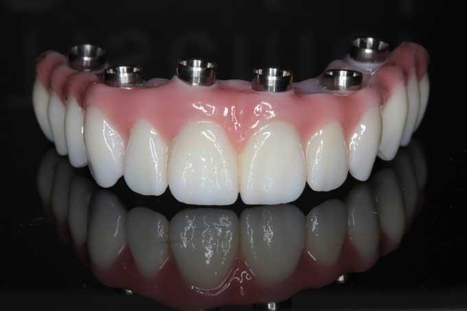 зубные протезы мостовидные