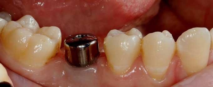протезирование на имплантах этапы