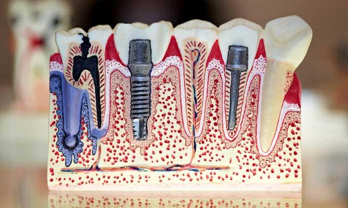 полное протезирование зубов на имплантах