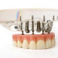 Этапы протезирования на имплантах зубов
