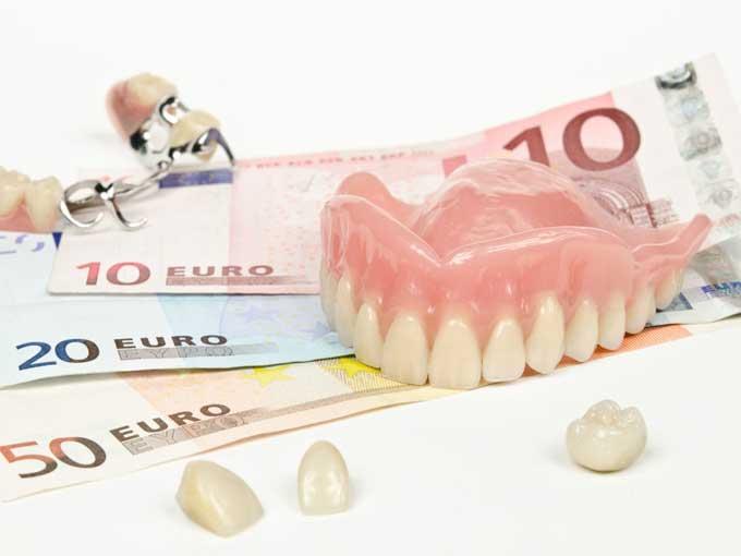 рейтинг имплантов зубов