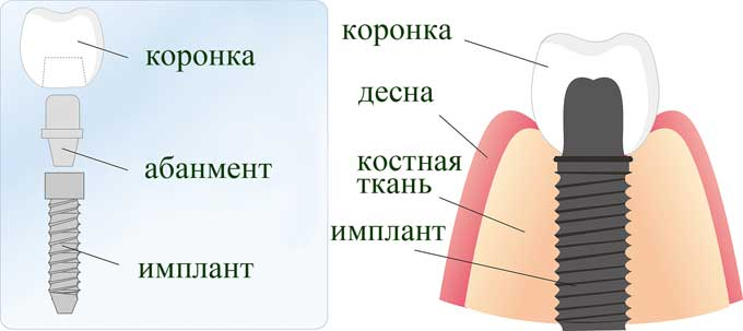 как устанавливают импланты зубов
