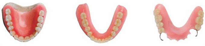 виды зубных протезов классификация