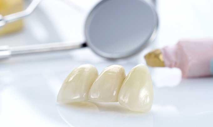 несъемные зубные протезы по новой методике
