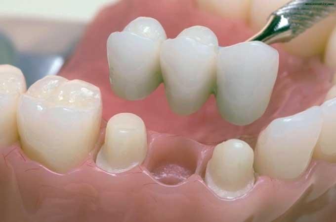 несъемные зубные протезы какие лучше