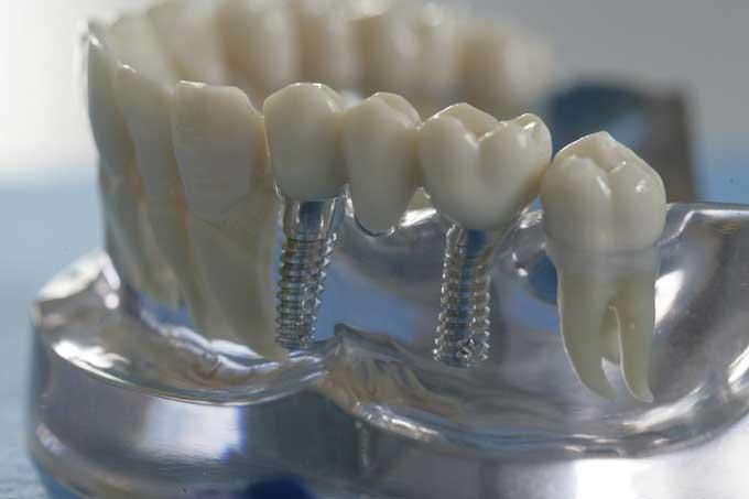 зубные протезы на имплантах