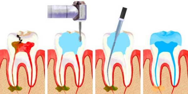 этапы удаления зубного нерва