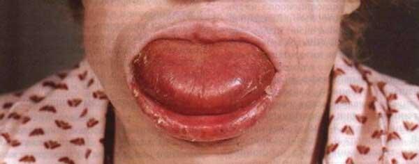 макроглоссия