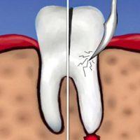 В каких случаях назначают гемисекцию зуба?