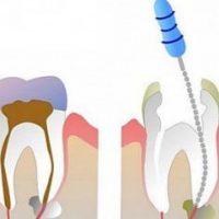 Самые действенные способы убить зубной нерв