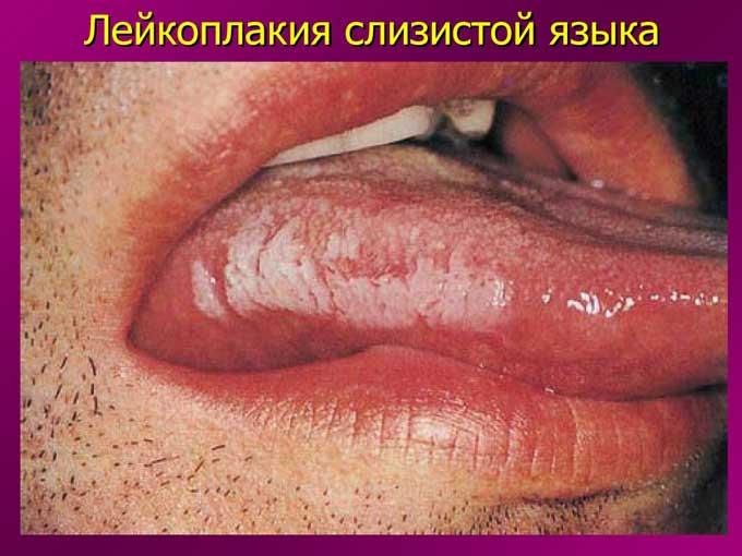 лейкоплакия языка лечение