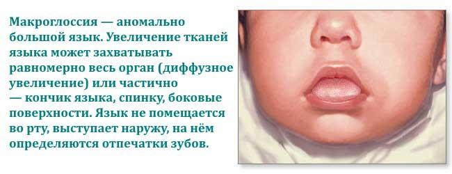 макроглоссия у новорожденных