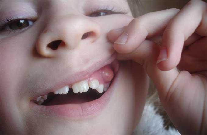 шишка на десне у ребенка фото