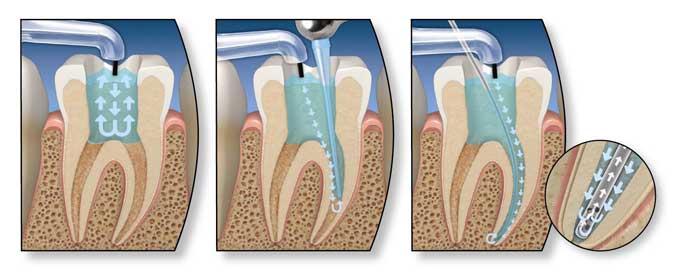 депофорез в стоматологии