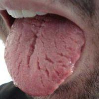 Причины возникновения и лечение складчатого языка