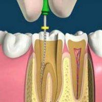 Основные сложности при удалении зубного нерва и их последствия