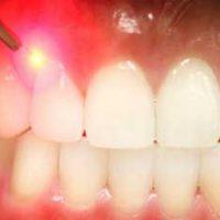 5 преимуществ лечения десен лазером