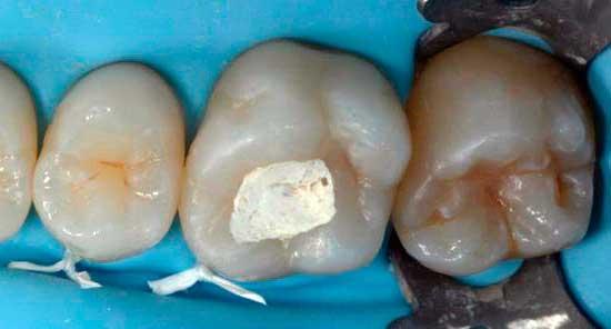 зачем кладут мышьяк в зуб