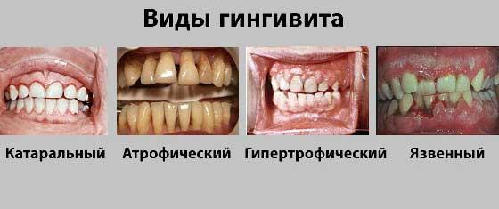 язвенный гингивит симптомы