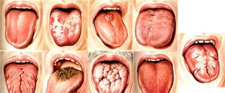 Как лечить трещины на языке в домашних условиях