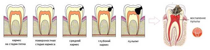 пульпит зуба симптомы