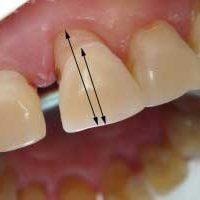 Отслоение десны от зуба — профилактика и лечение