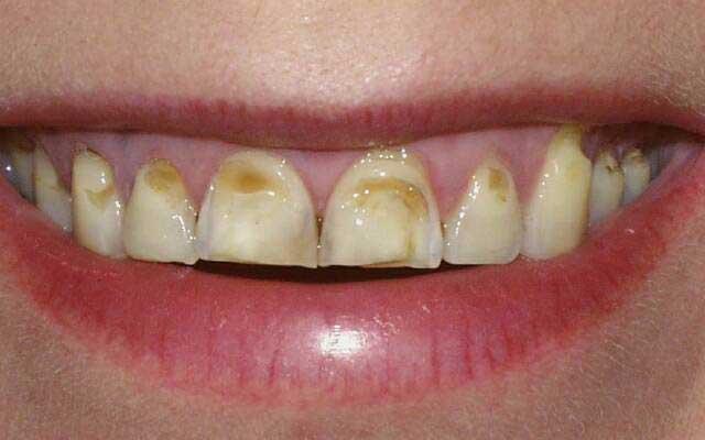 лечение эмали зубов