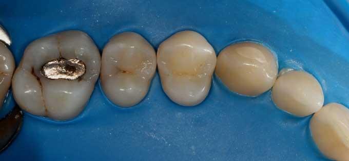 наложение коффердама в стоматологии