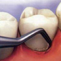 Особенности кюретажа в стоматологии