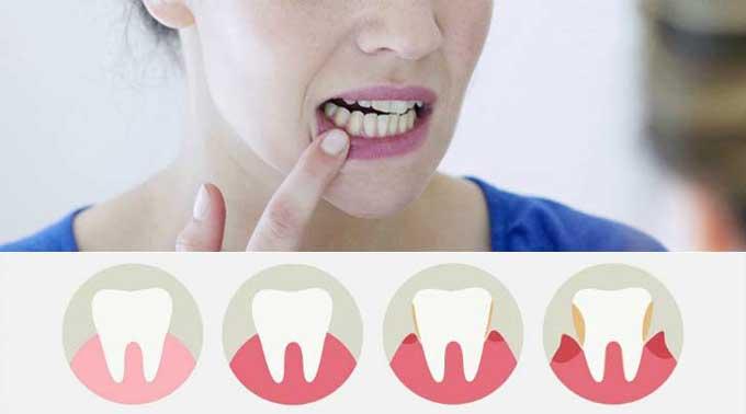 десна отошла от зуба лечение